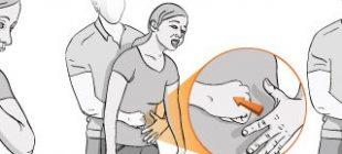 Heimlich Manevrası Nasıl Yapılır?