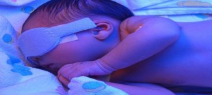 Bebeklerde Bilirubin Yüksekliği