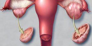 Polikistik Over Sendromu (PCOS) Hastası Olmak