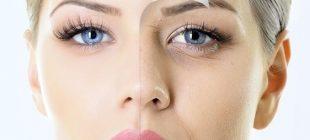 Yüzünüzdeki Kırışıklıkları Azaltmak İçin Bazı Özel Karışımlar
