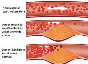 kolesterol-trigliserid-sorunlari
