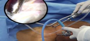 Artroskopi Nedir ve Kullanım Alanları Nelerdir