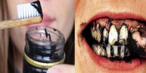 Dişlerdeki Kahve ve Sigara Lekelerini Yok Eden Doğal Yöntem