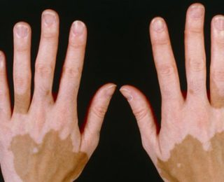 Vitiligo Hastalığı Nedir